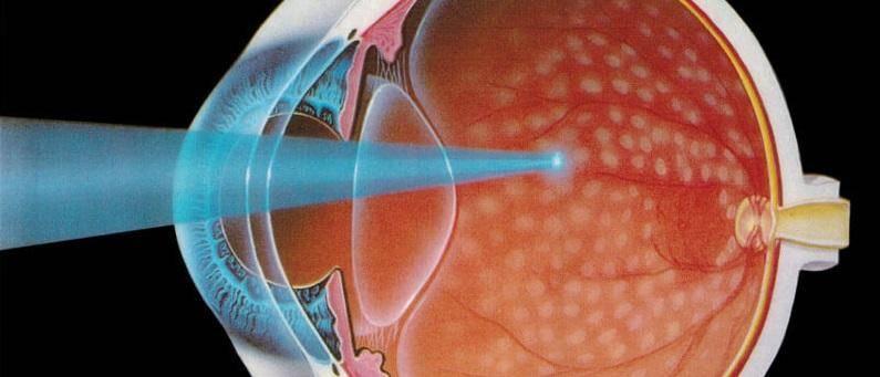 Рекомендации и ограничения после операции на сетчатке глаза