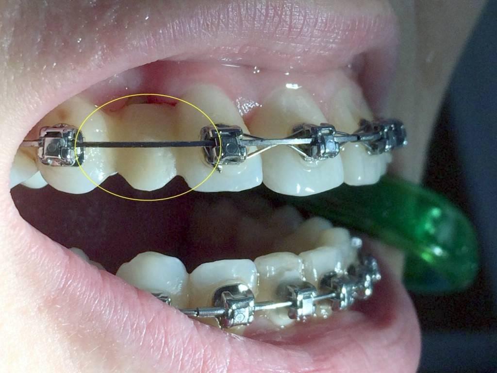 Ортодонтия — википедия с видео // wiki 2