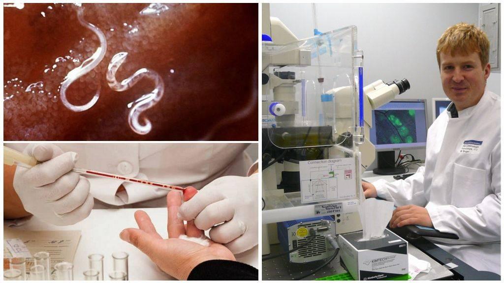 анализ на паразитов по крови