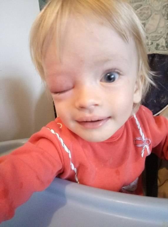 Чем лечить комариные укусы у ребенка