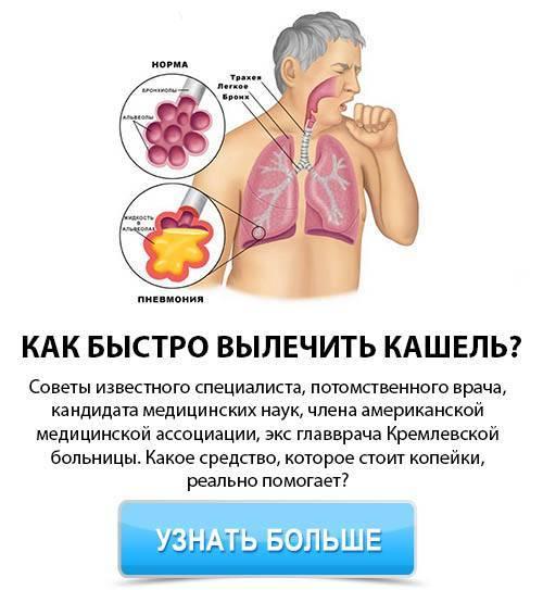 как облегчить сухой кашель в домашних условиях