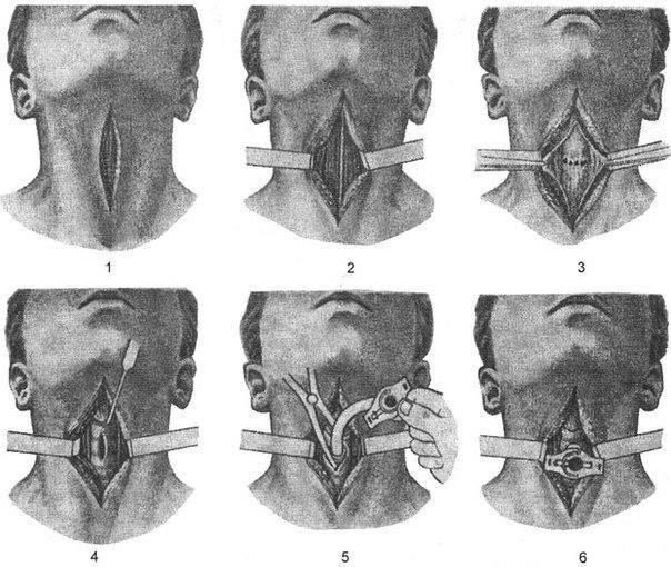 Как быстро снять отек горла, симптомы и методы лечения