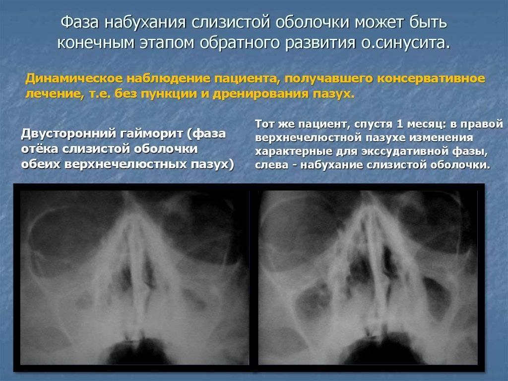 пристеночный гайморит симптомы