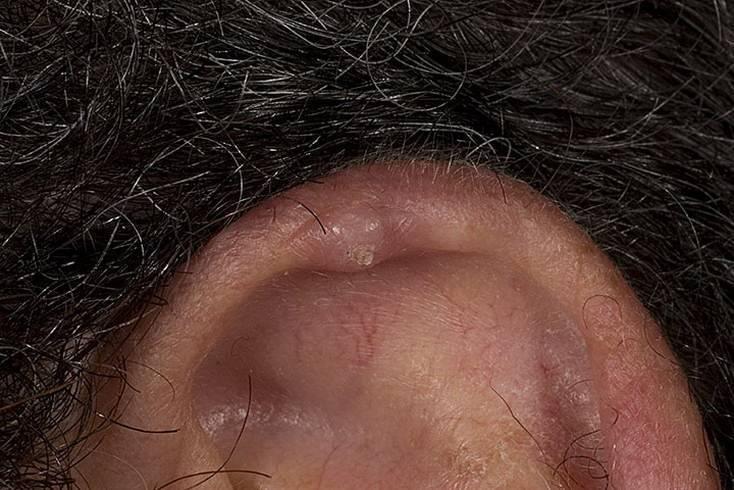 Воспаление мочки уха атерома