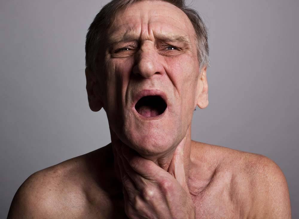 рак горла 3 степени сколько живут