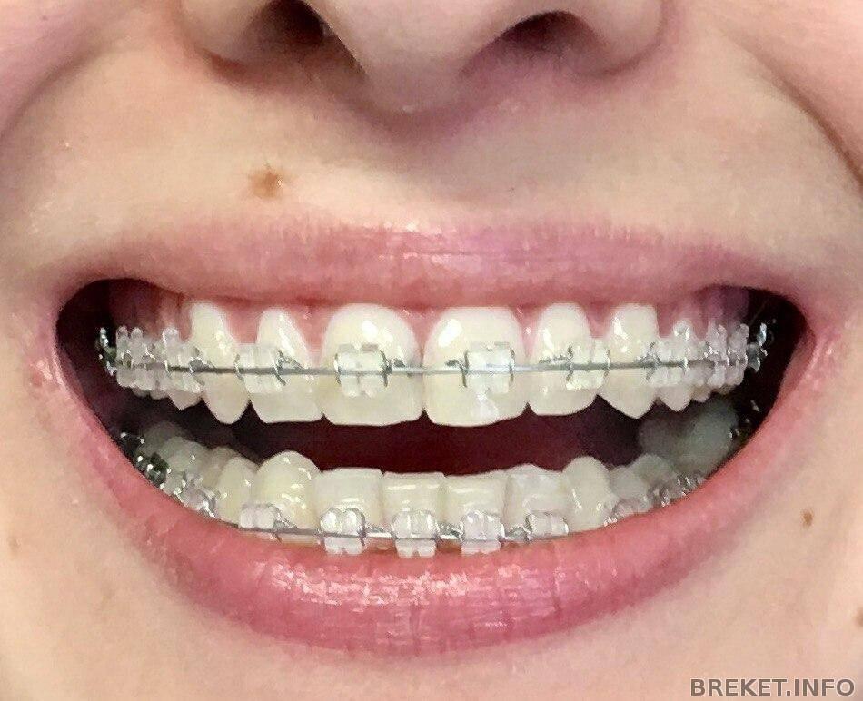 как самостоятельно выровнять зубы