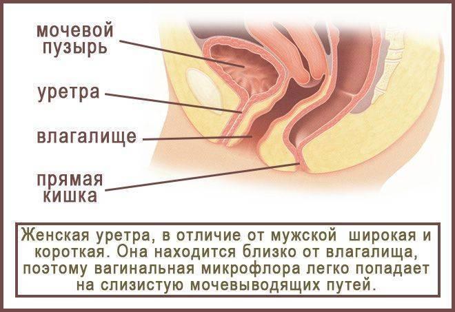 Цистит после полового акта лечение | советы доктора