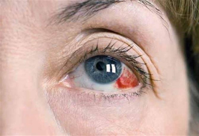 Почему краснеют глаза после душа и бани. нормально ли это или стоит насторожиться: красные глаза после бани и алкоголя. красные глаза после душа: причины