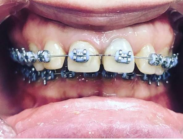 Брекеты натерли губу. почему брекеты травмируют щеки и губы? что делать, когда брекеты натирают