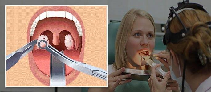 Удаление миндалин при хроническом тонзиллите: отзывы и последствия