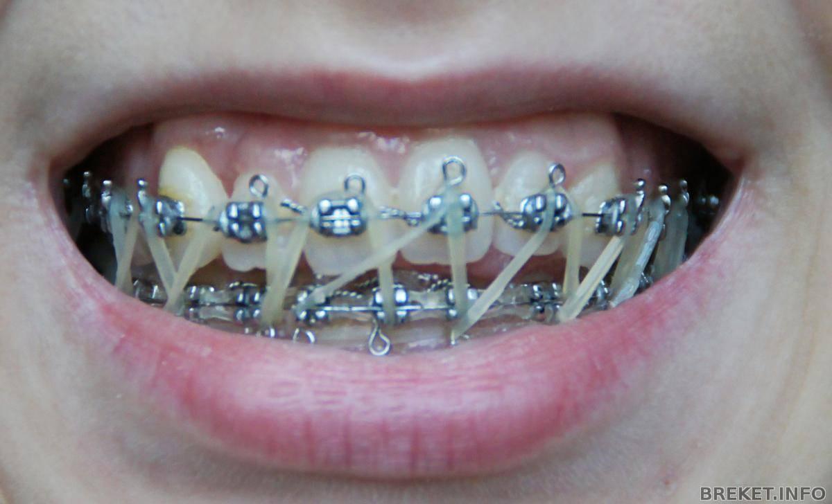 Ортодонтические тяги, эластики