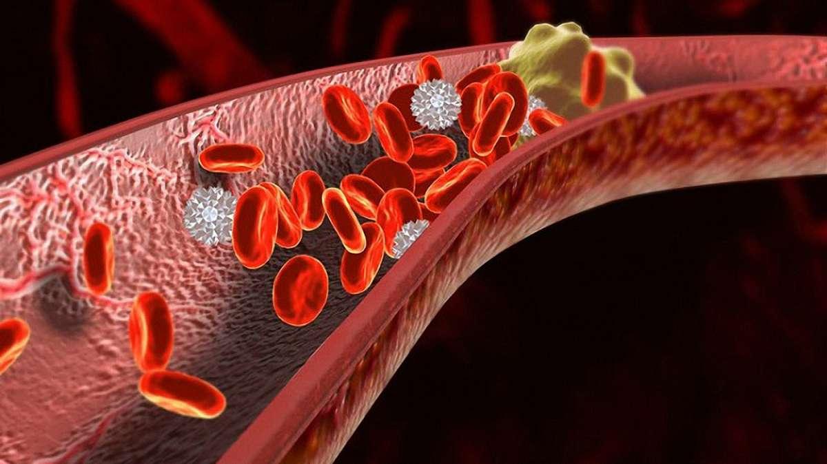 Начальные признаки атеросклероза