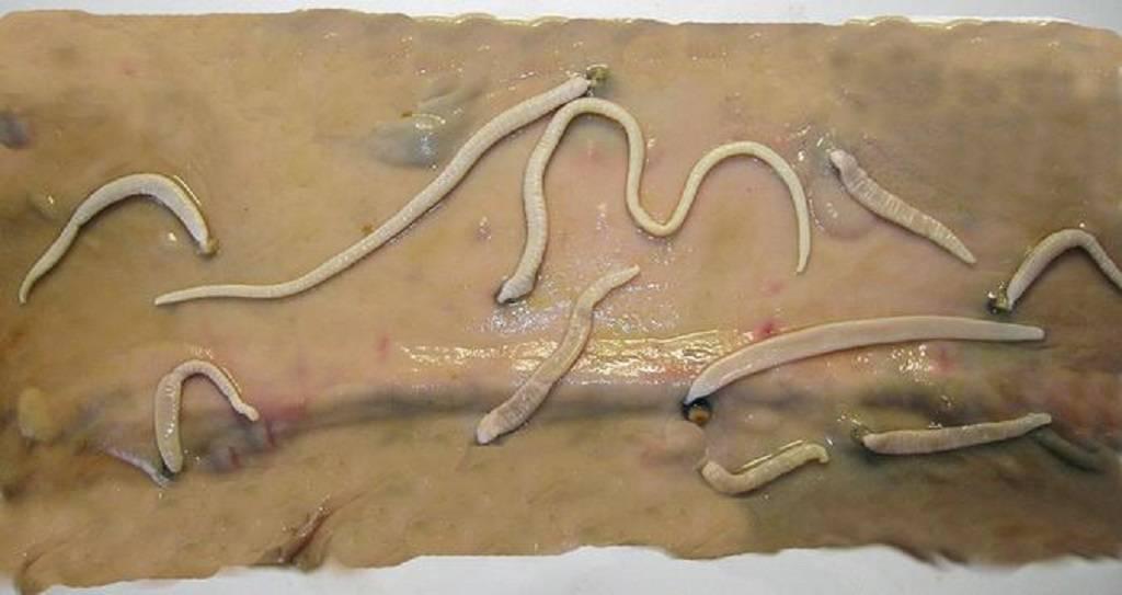 легочный капилляриоз