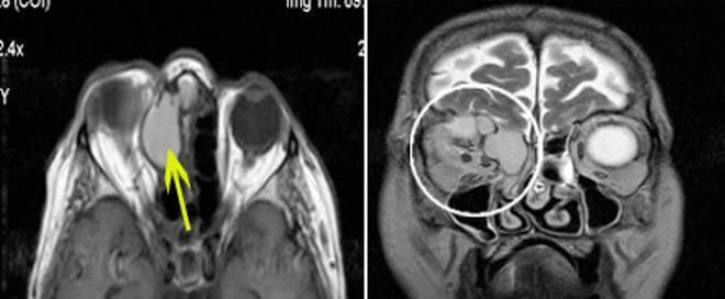 Операции по удалению кисты гайморовой пазухи: показания, ход и виды, реабилитация
