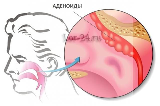 Комаровский: аденоиды 3 степени - лечение без операции у детей, как лечить в домашних условиях