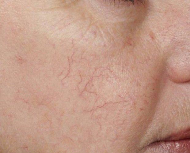 Высыпания на коже при заболеваниях печени фото | советы доктора