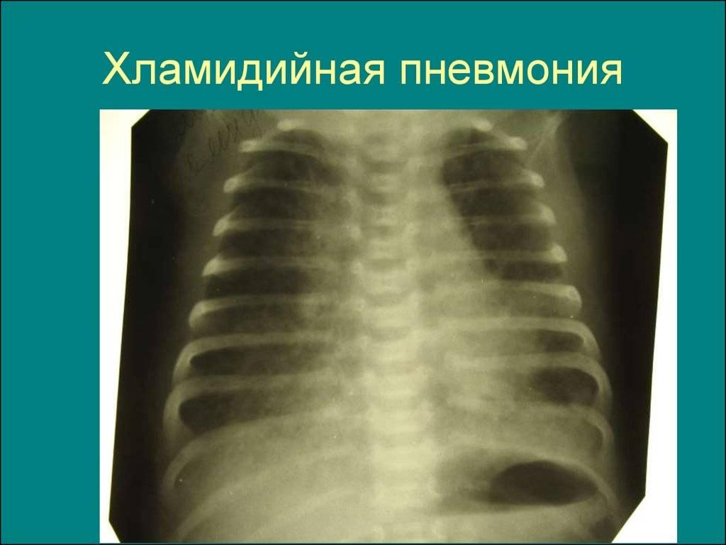 Проявление хламидийной пневмонии у детей и взрослых