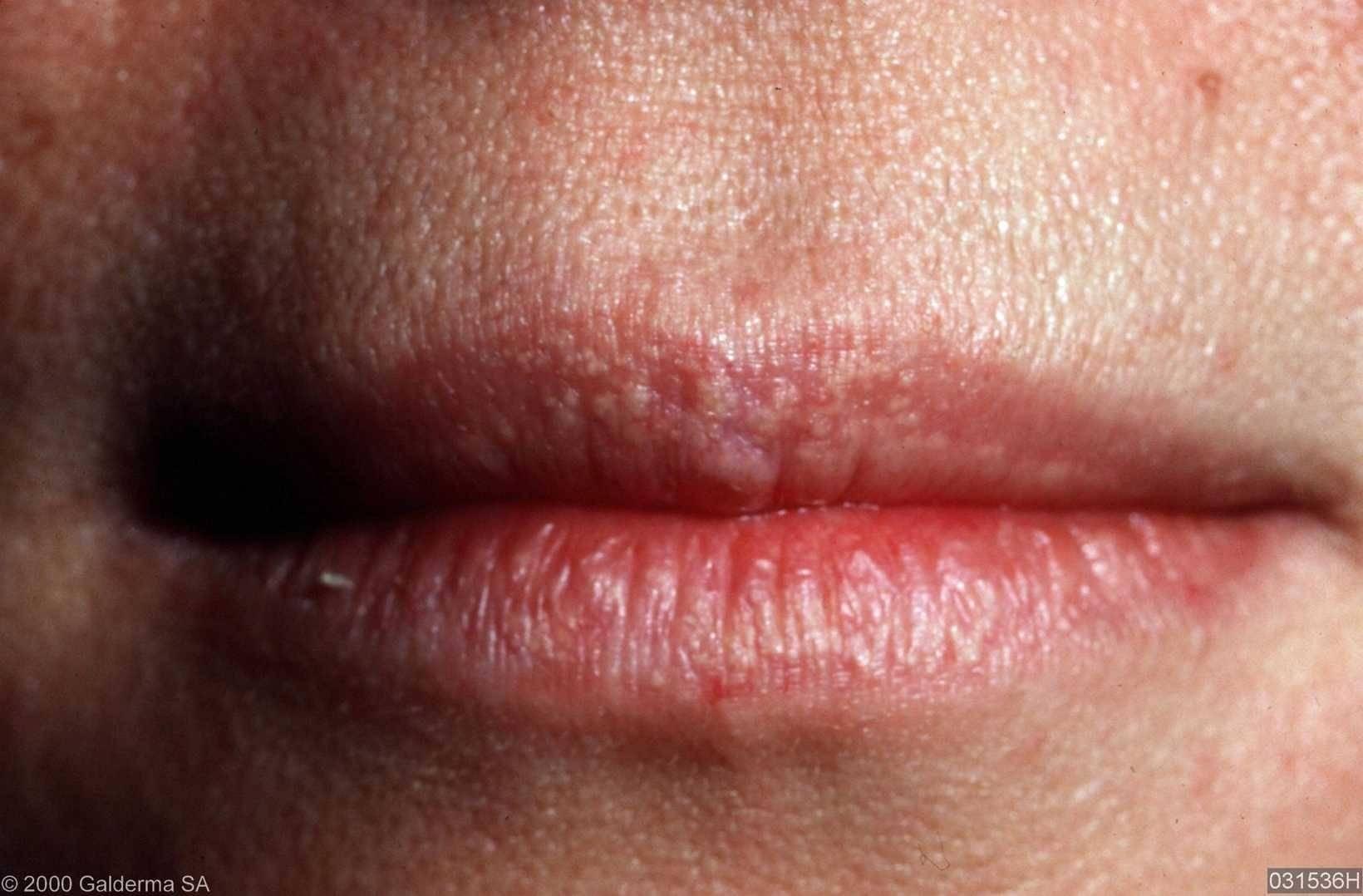 Можно ли заразиться вич через герпес на губе
