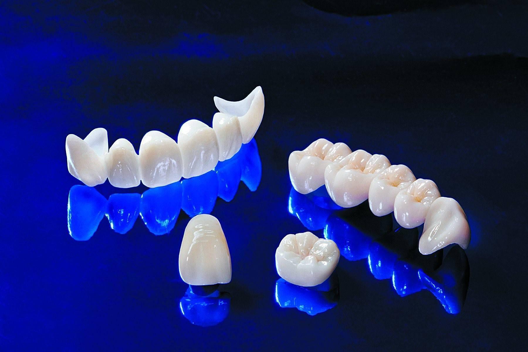 Безметалловые керамические коронки на зубы, цены, фото