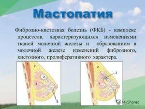 Фиброзно-кистозная мастопатия молочных желез.