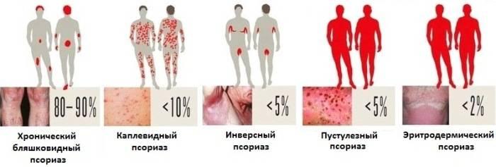 рекомендации по лечению каплевидного псориаза