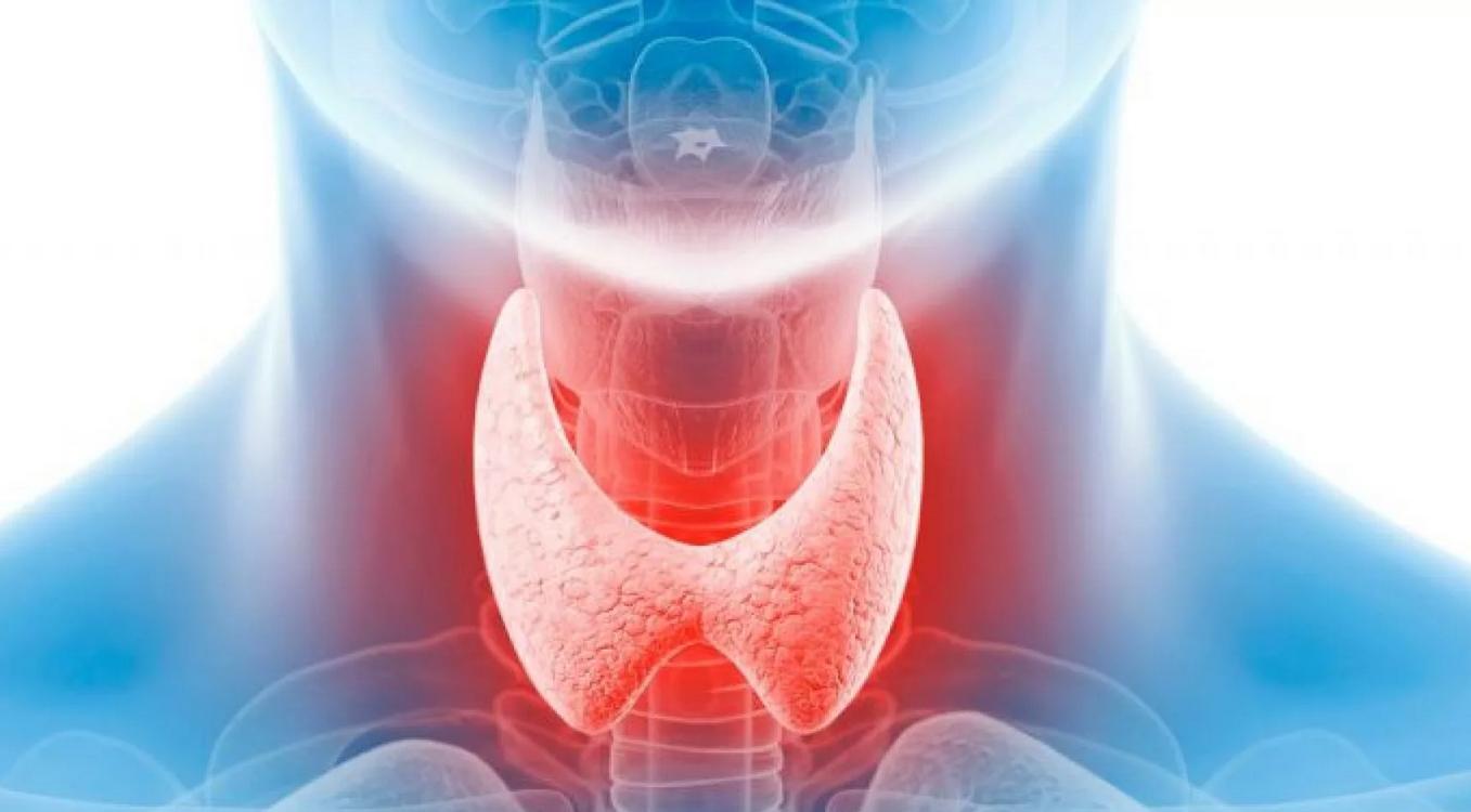щитовидка что это такое