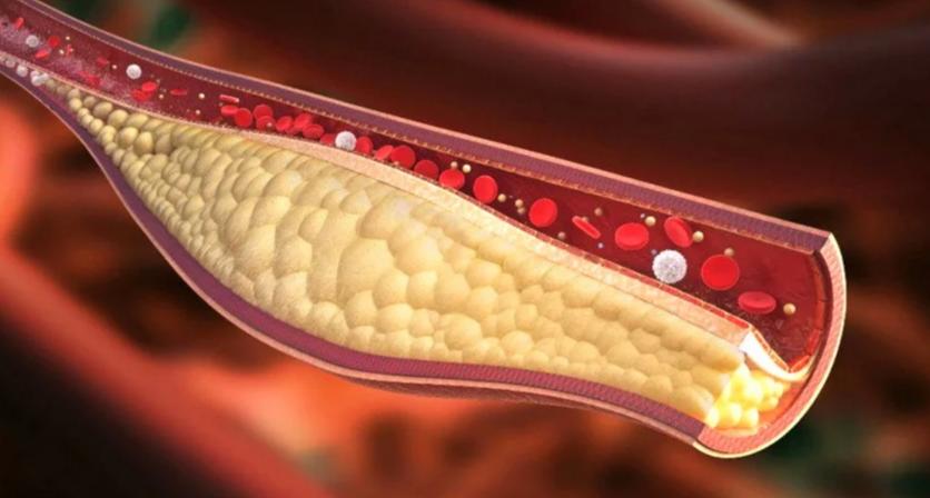 Чем заменить статины для снижения холестерина?