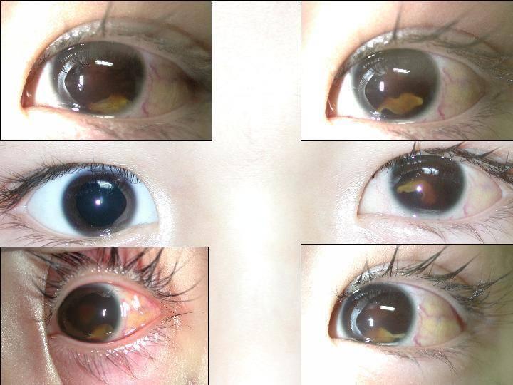 паразиты в глазу человека