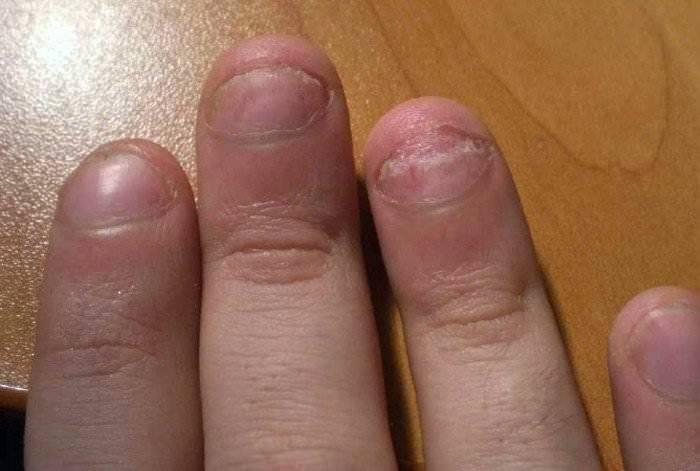 Лечение псориаза ногтей на руках