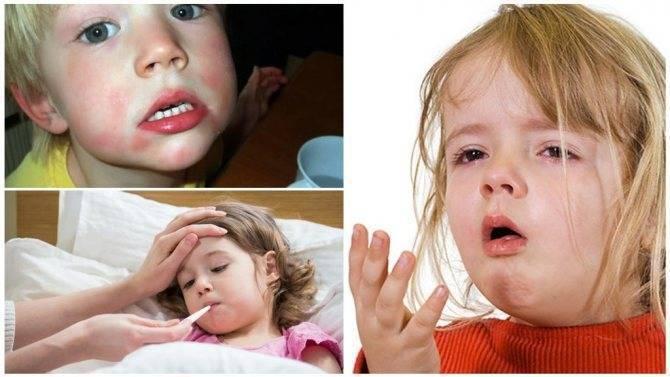 Комаровский глисты у детей видео