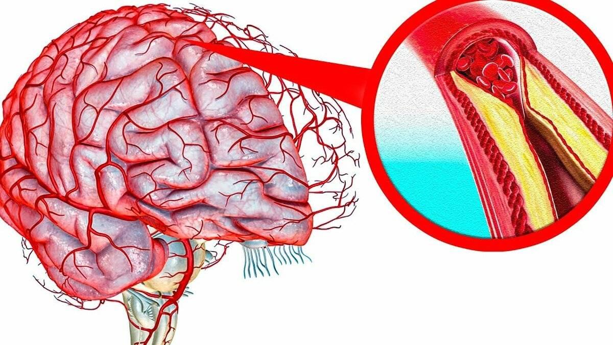 мкб 10 церебральный атеросклероз