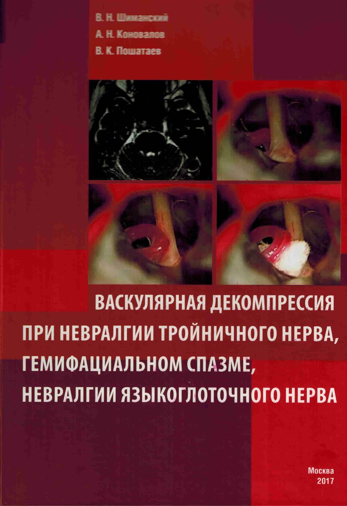 Невралгия языкоглоточного нерва: причины, симптомы воспаления и лечение