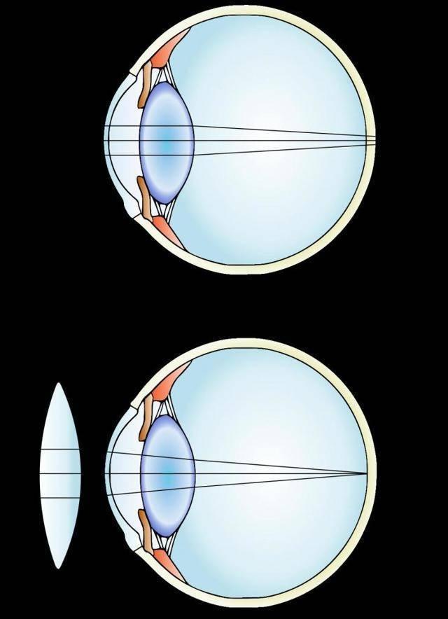 с помощью каких линз исправляется дальнозоркость