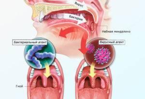Заразна ли ангина для окружающих: пути заражения, профилактика