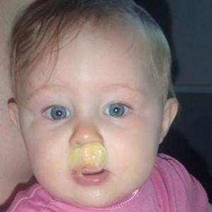 желтые сопли у ребенка причины