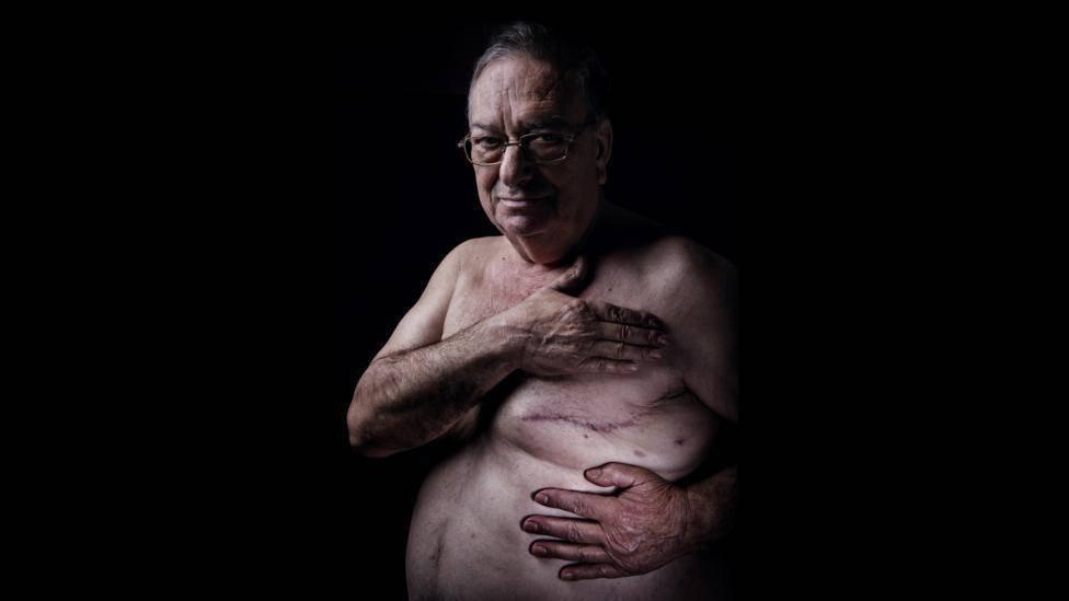 рак молочной железы 4 стадия
