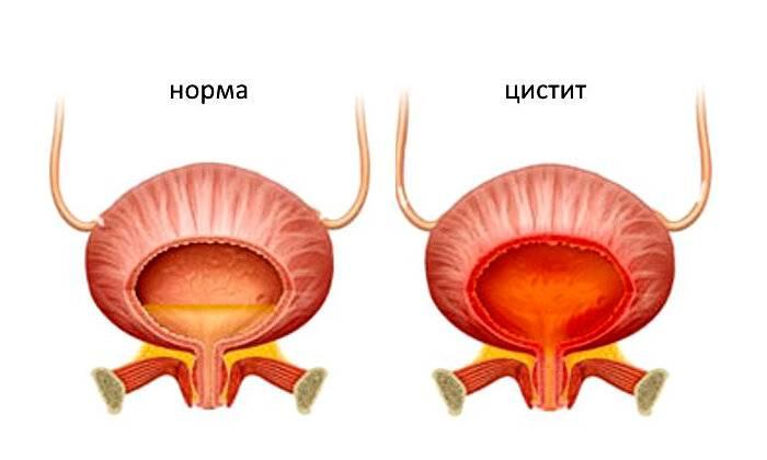 Шеечный цистит мочевого пузыря: лечение