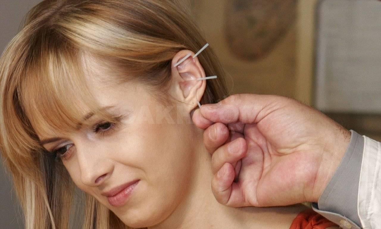 Кохлеарный неврит: причины, симптомы, диагностика и лечение