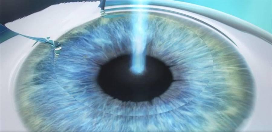 Лечение, которое оправдывает себя! эксимерлазерная коррекция зрения