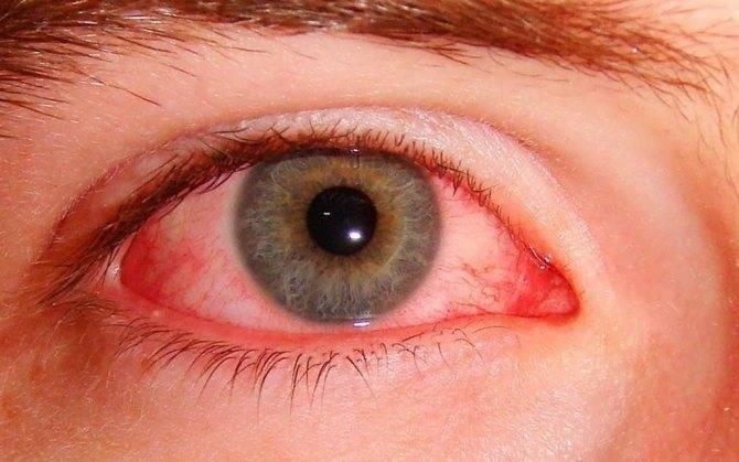 Грибок на лице: симптомы и лечение заболевания