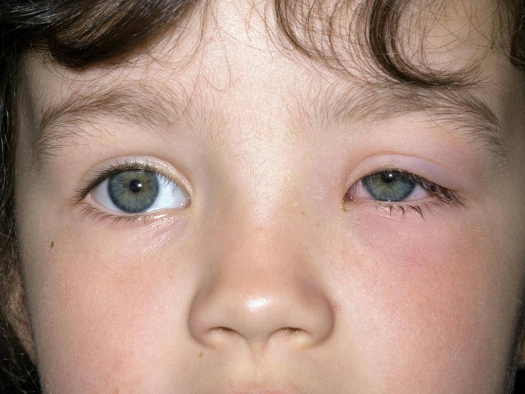 лечение аллергического коньюктивита у детей