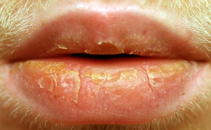Как вылечить дерматит на губах