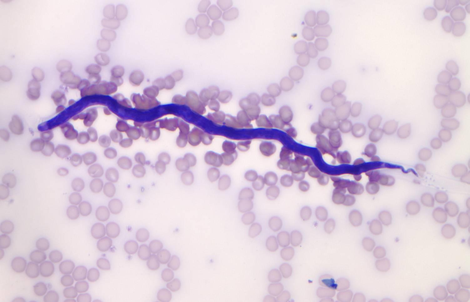 Капилляриоз печеночный  - симптомы болезни, профилактика и лечение капилляриоза печеночного , причины заболевания и его диагностика на eurolab