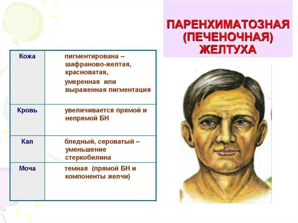 Желтуха — википедия с видео // wiki 2