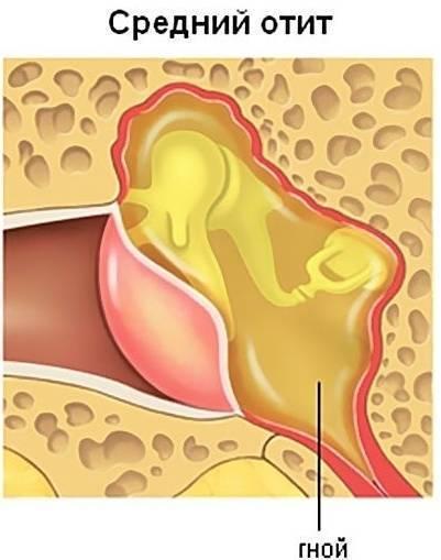 Гиперемия наружного слухового прохода: причины и лечение. мирингит уха или воспаление барабанной перепонки краевая гиперемия барабанной перепонки