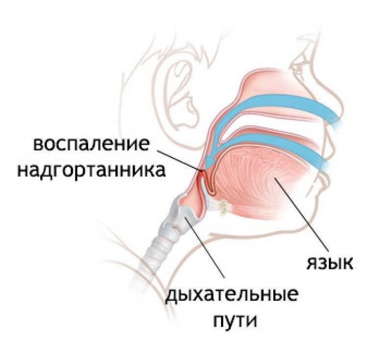 Воспаление надгортанника - эпиглоттит