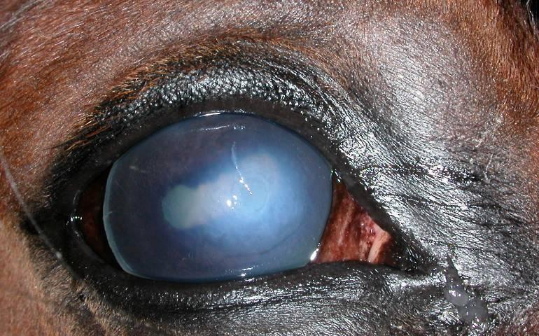 лечение язвы роговицы глаза