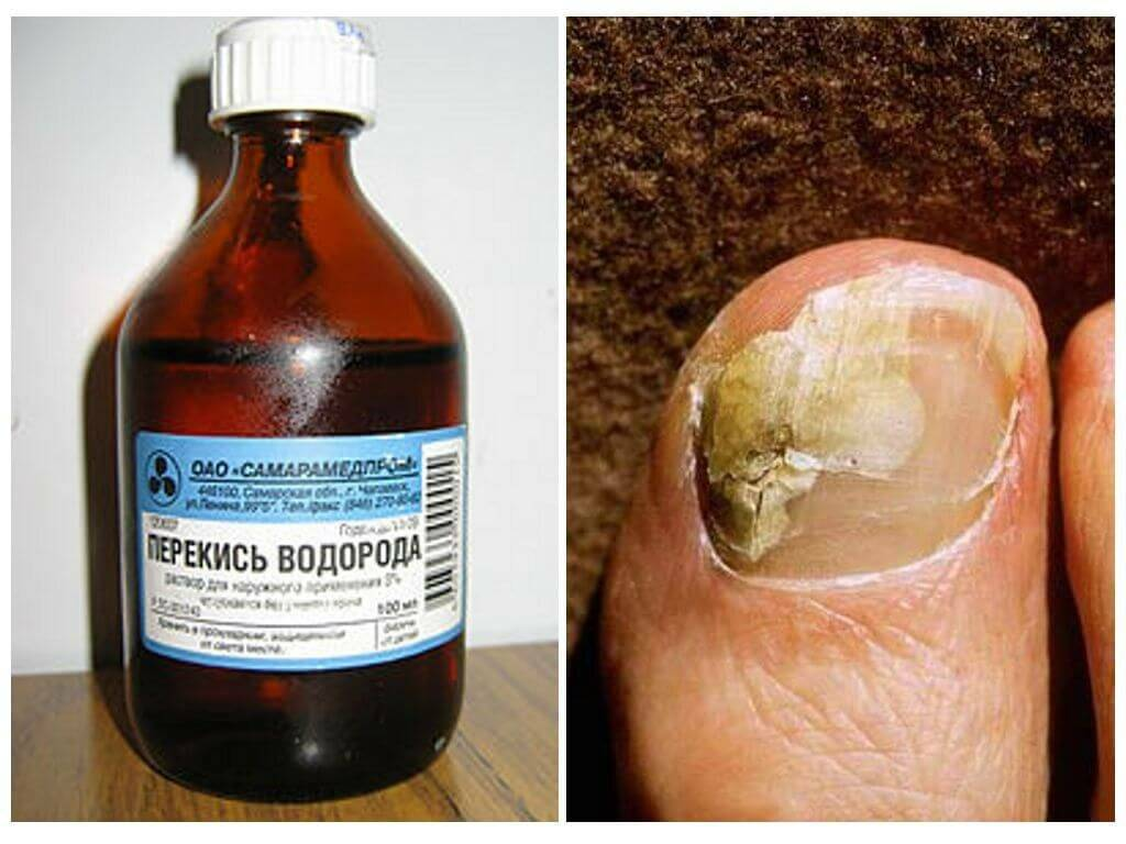 перекись водорода от дерматита