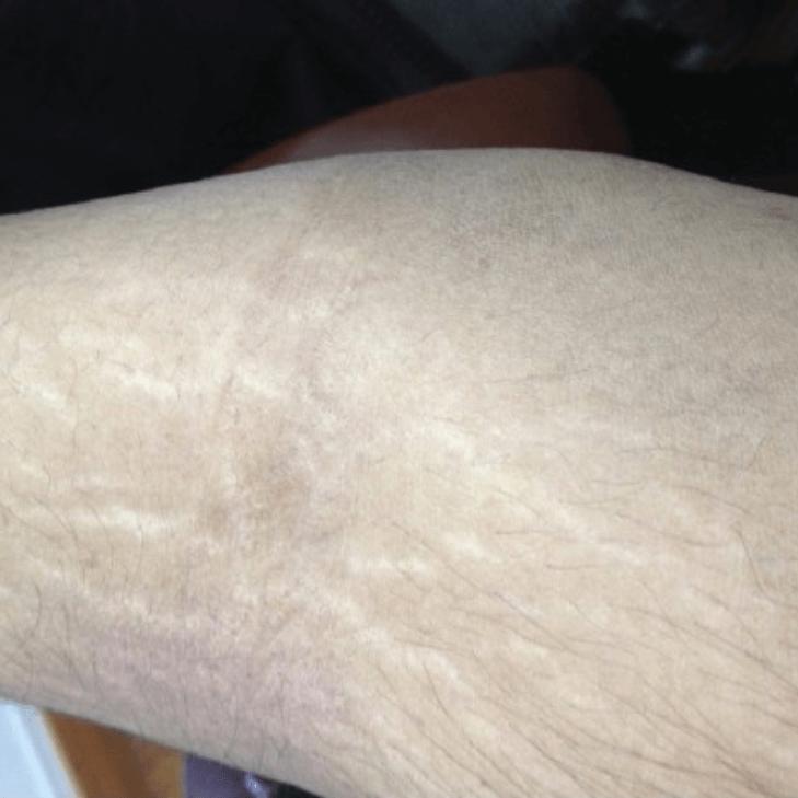 Периорбитальный дерматит — лечение, симптомы, причины