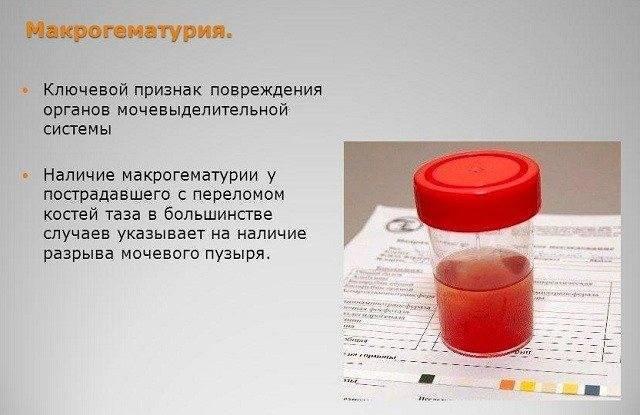 Причины цистита с кровью у женщин. лечение, возможные осложнения